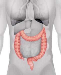 Diverticulite Aguda: Causas, Sintomas e Tratamentos